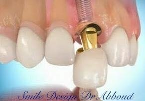 Stomatologie Smile Design By Dr Ayman Abboud